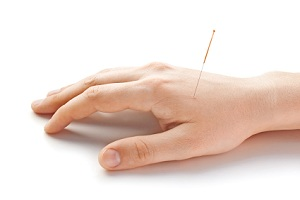 IBS Treatment -  Acupuncture